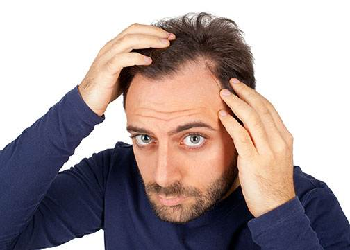 How to Improve Male Hair Loss